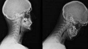 straight tech neck