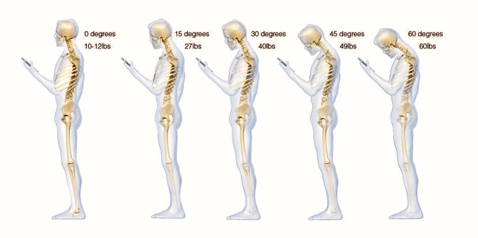 neck pain tech neck head weight