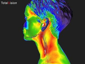thermography carotid