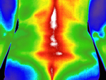 thermography back pain