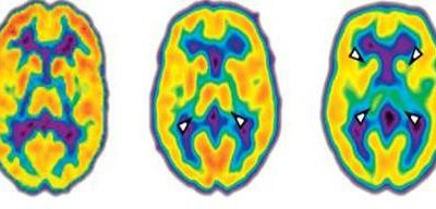 Addressing Pain Through The Brain