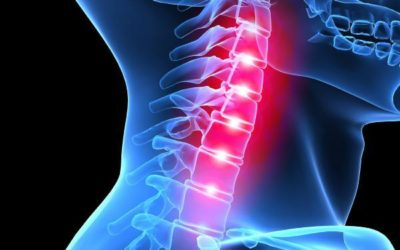 Ignoring This Curve Can Increase Your Risk Of Disc Herniation