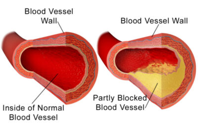 """What Your Doctor May Not Tell You About LDL (""""Bad"""") Cholesterol"""