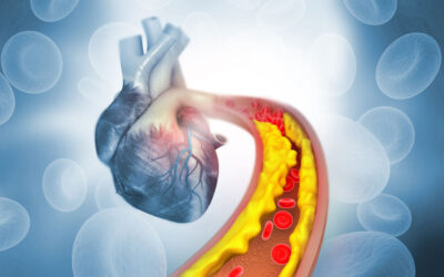 Cholesterol Issues? Don't Overlook This Common Underlying Cause